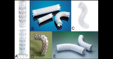 Stent-Graft Repair in Acute and Chronic Diseases of the Thoracic Aorta