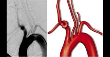 Aortic Arch Anomalies are Associated with Increased Risk of Neurological Events in Carotid Stent Pro